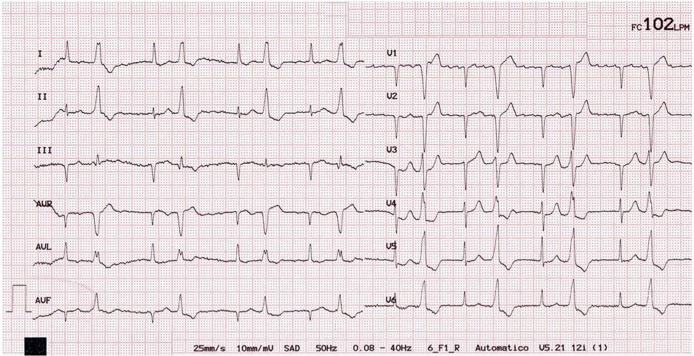 Arritmias Cardiacas | Una quironauta en la gestión